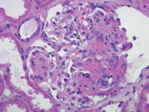 Figure 2: Renal Biopsy