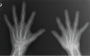 Figure 1: An X-ray of the hands, showing extensive erosion over the ulnar styloid, carpal bones and the carpometacarpal joints of the right side (A), along with abnormal shortening and thinning of diaphysis over the right second through fourth metacarpal bones (B). The X-ray of the left hand appears normal.