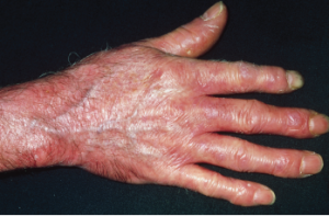 Red, shiny, tight skin on the hand due to scleroderma.