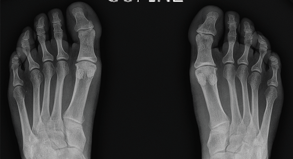 Figure 4. Bilateral feet radiographs appear normal except for subtle spurring at the bilateral first proximal interphalangeal joints.