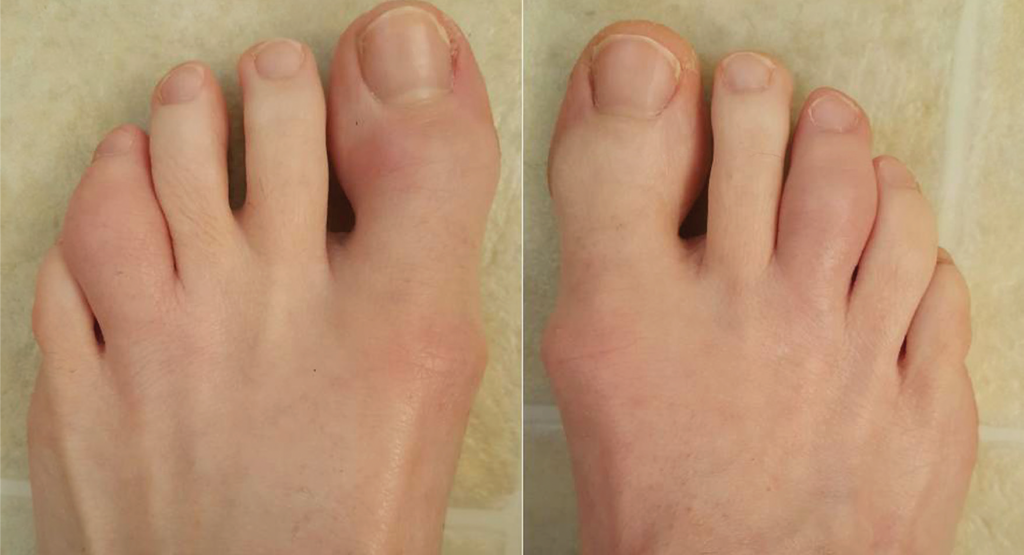 Acute dactylitis of the left fourth and right third toes.