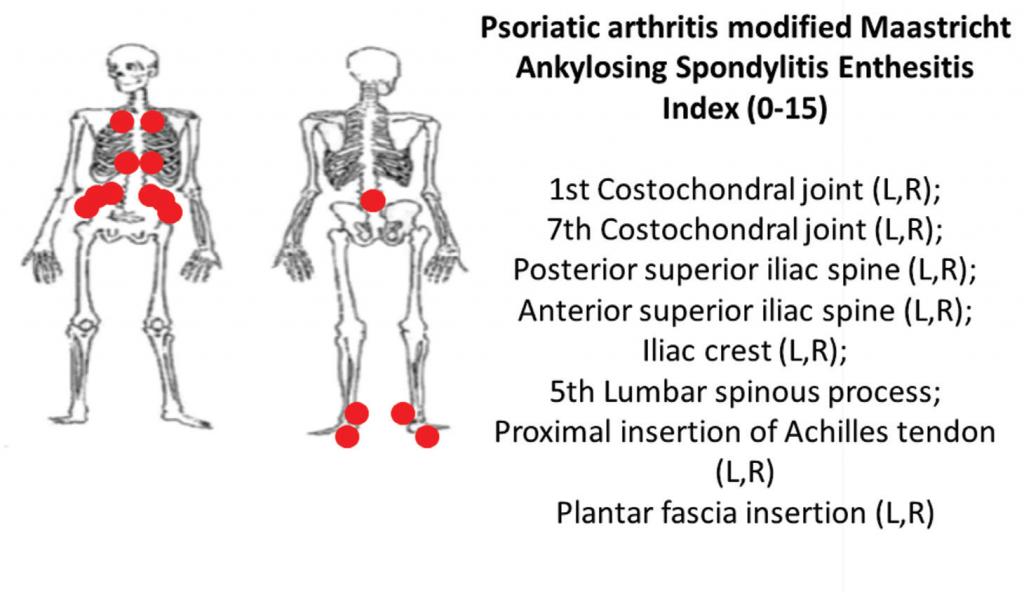 6B: The PsA-modified Maastricht Ankylosing Spondylitis clinical enthesitis index (PsA MASES).z