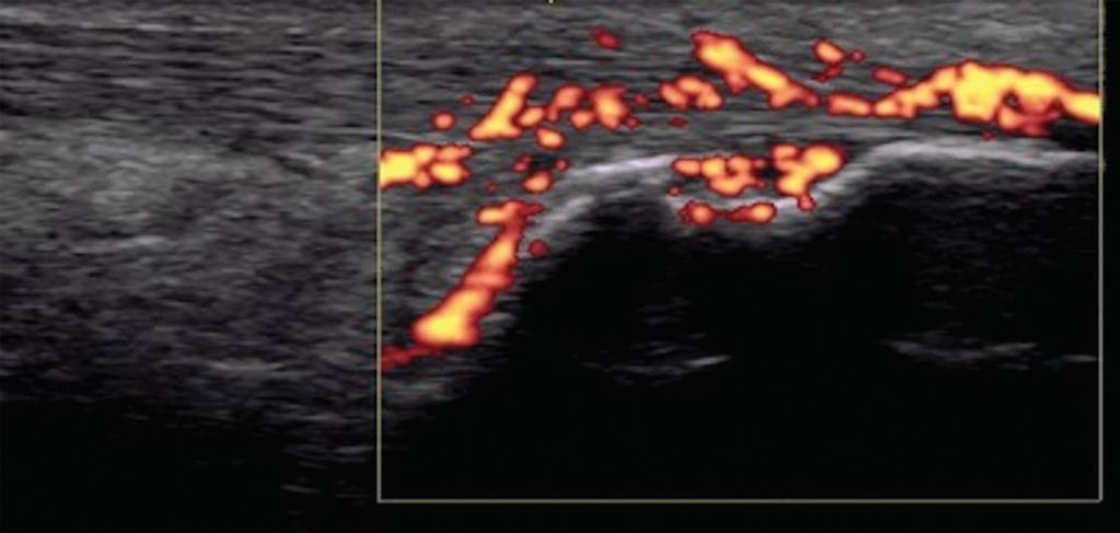 Figure 7. Achilles tendon enthesitis with active Doppler; erosion of calcaneus.