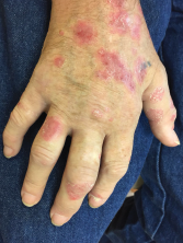 Eleven months following treatment initiation with nivolumab, a 61-year-old male developed a flare of skin psoriasis, as well as swelling and pain in multiple joints.
