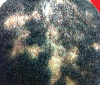Dissecting cellulitis of the scalp. Note the areas of alopecia where subcutaneous abscesses are located.