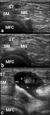 Images a, b and c are transverse views of the medial popliteal space. Due to anisotropy, the semitendinosus area (adjacent to ST) is hypoechoic in appearance, and could be confused with a popliteal cyst. The ST become hyperechoic in b after transducer angle adjustment, thereby making the potential cyst disappear. In c, a real popliteal cyst (asterisk) is apparent between the semimembranosus (SM) and medial gastrocnemius (MG), and over the medial femoral condyle (MFC).