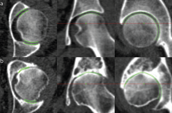 "JSM performance at the extremes of disease. Joint space margins are shown in green as seen in axial, coronal and sagittal planes (left to right) at two left hips. (a) An individual with a radiographic K&L grade of 0 (no disease) and minimum joint space width of 2.0 mm. (b) An individual with a radiographic K&L grade of 3 (moderate disease) and minimum joint space width of 0 mm. This demonstrates that JSM is still able to represent joint space width as it approaches zero, important for analysis in advanced disease. Credit: Reprinted by permission from ""A new quantitative 3D approach to imaging of structural joint disease,"" Scientific Reports, under the Creative Commons Attribution 4.0 International (CC BY) license (https://creativecommons.org/licenses/by/4.0/legalcode)."