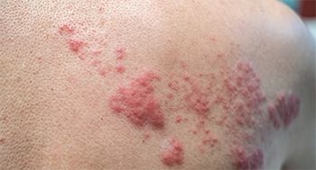 This rash shows the effects of varicella-zoster reactivation—shingles.