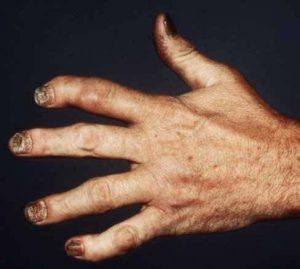psoriatic arthritis hand photo