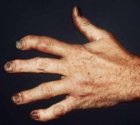 New Psa Guideline Released The Rheumatologist