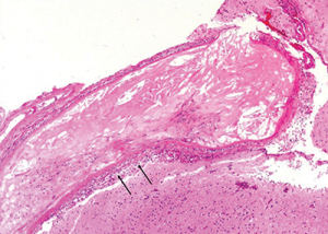 The image at higher magnification is highlighted to show the cholesterol accumulation, and intramural and perivascular inflammatory infiltrates.