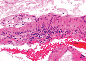 The image at even higher magnification shows the cholesterol accumulation, and intramural and perivascular inflammatory infiltrates.