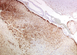 Immunohistochemistry for GFAP (glial fibrillary acidic protein) highlights the reactive gliosis of the subacute infarct.