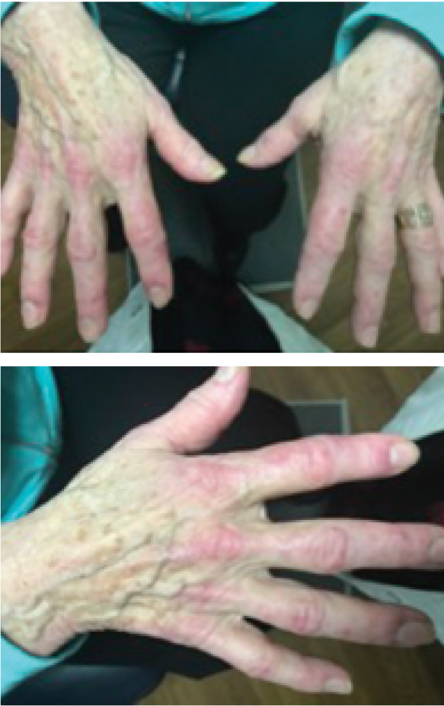 Figures 1 & 2: A hallmark skin manifestation of dermatomyositis includes Gottron's papules, lesions consisting of erythematous to violaceous papules and plaques found over the metacarpophalangeal and interphalangeal joints.