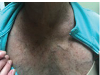 Figure 3: The flushing rash of carcinoid can mimic the rash of dermatomyositis, particularly the V sign, which refers to macular erythema over the anterior neck and upper chest.