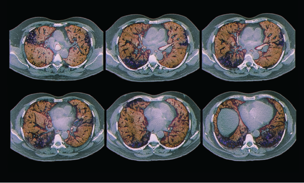 Colored computed tomography (CT) scans of axial sections through the chest of a 68-year-old patient with interstitial lung disease (diffuse parenchymal lung disease, DPLD). Parenchymal disease appears in less than 5% of lupus patients.