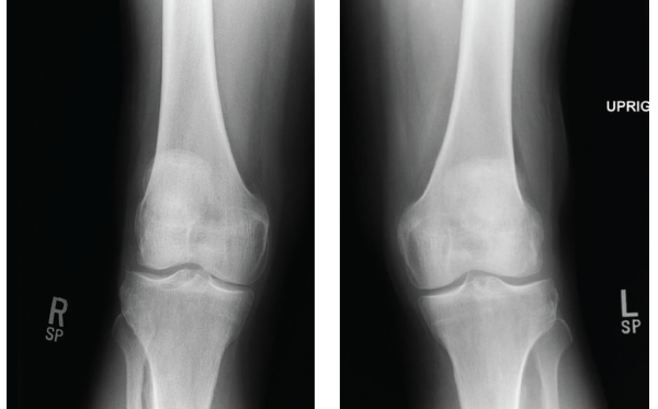 Figures 1 & 2: X-rays of the Right & Left Knees