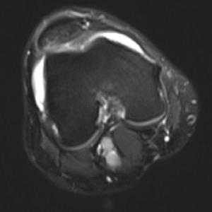 Figure 3: MRI of the Knee