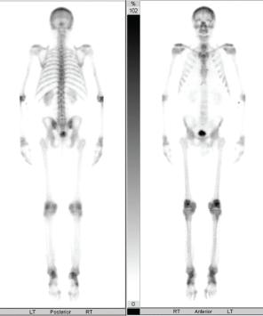Figure 4: Bone Scan