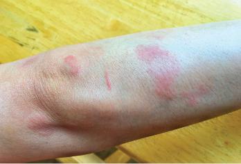 Skin manifestations of SLE.