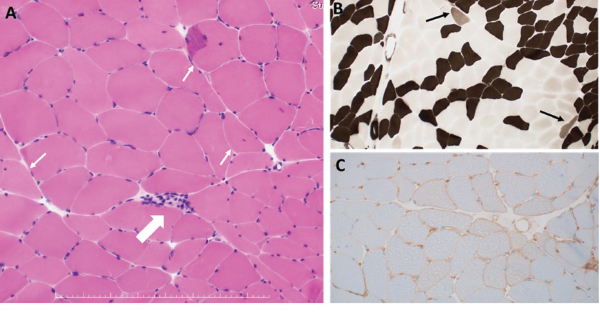 A: HE staining. One necrotic fiber was observed (large arrow). Some muscle fibers with internal nuclei were observed (small arrow). B: ATPase staining. A few type 2C fibers were observed (arrows). C: MHC Class I staining. Moderate upregulation of sarcolemmal MHC class I molecule was seen.