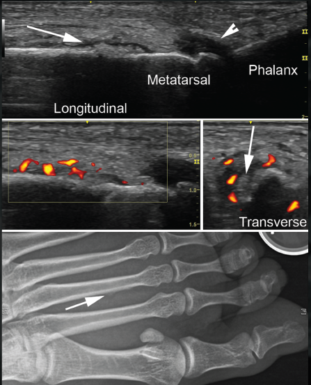 Ultrasound Image Review: A 30-Year-Old Woman with Left Foot Pain