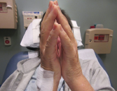 Figure 2. The prayer sign, which is rarely seen in patients suffering from eosinophilic fasciitis.