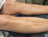 Figure 3. The skin of the patient's lower extremities was shiny, thickened and hairless.