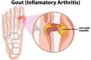 The ACR's & EULAR's Gout Guidelines Include Treatment