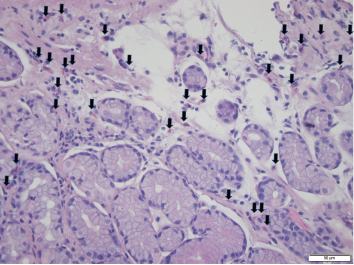 Foci of increased eosinophils (arrows) in superficial layers of the stomach (hematoxylin and eosin stain at 40X magnification).