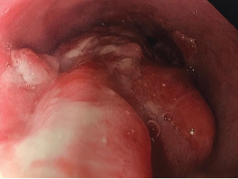 Endoscopy findings reveal distal esophageal adenocarcinoma.