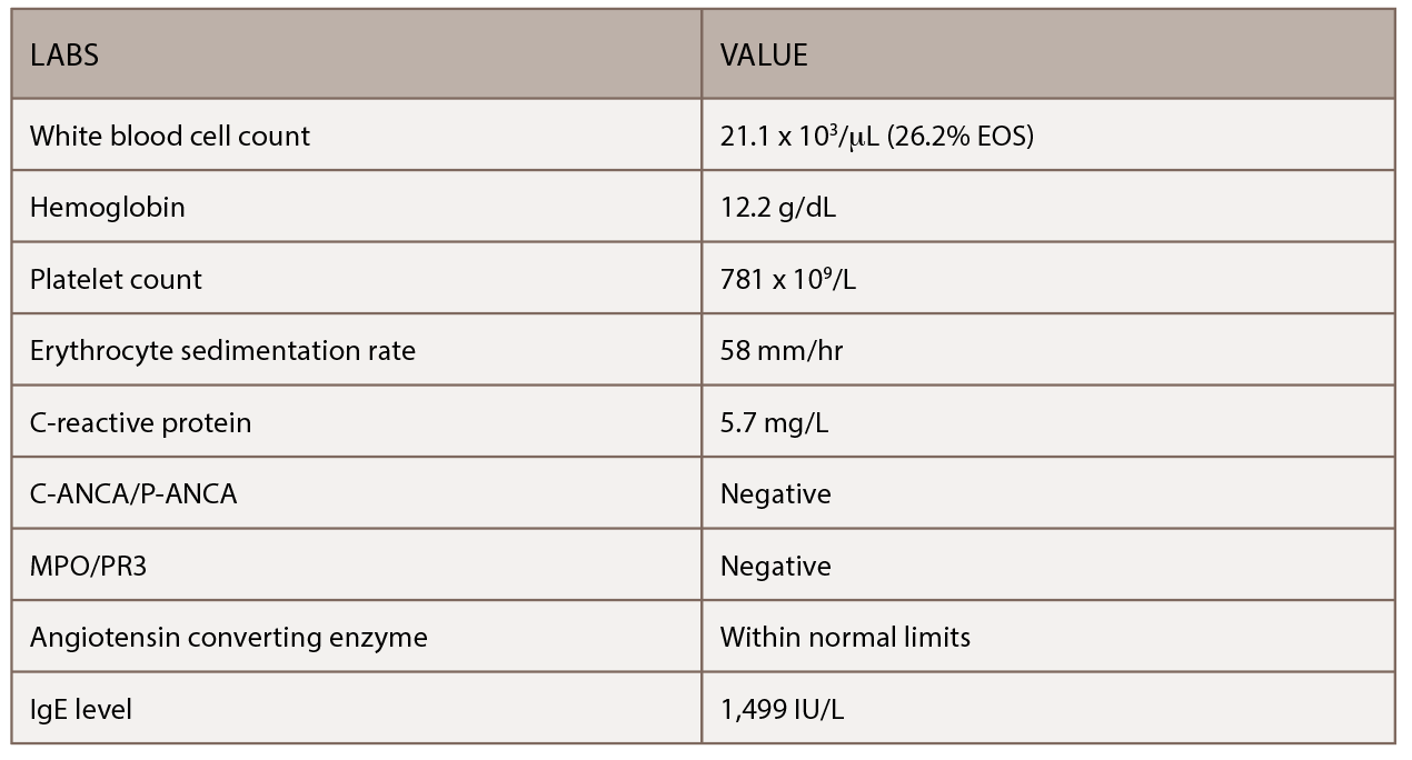 Table 1: This table shows the patient's initial outpatient rheumatology serologic workup.