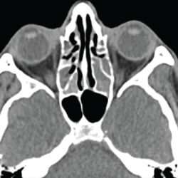 Figure 4. This sinus CT shows severe nasomucosal disease with near complete opacification of the bilateral ethmoid sinuses.