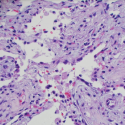 Figure 5. A transbronchial lung biopsy showed bronchiole walls containing scattered infiltrates of eosinophils in the adventitia.