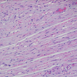 Figure 6. A sural nerve biopsy demonstrated arteries in longitudinal sections with thrombosis and eosinophilic infiltrate, consistent with vasculitis.