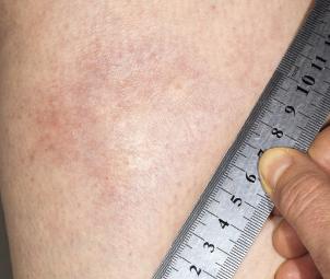 A morphea plaque on the leg.