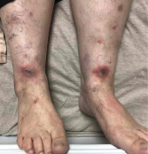 Image 1: Both of the patient's lower legs and feet featured lesions.