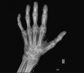 Figure 1: An X-ray of the left hand showed extensive vascular and periarticular calcification.