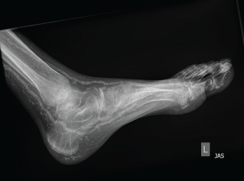 Figure 2: An X-ray of the left foot showed extensive vascular calcifications and no radiographic evidence of gout.