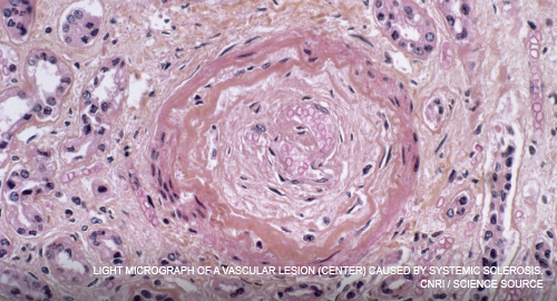 Light micrograph of a vascular lesion (center) caused by systemic sclerosis.