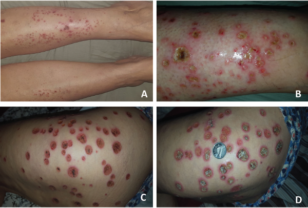 These images show the patient's RCEV ulcerative skin lesions over two weeks, including image A, which shows an intensely pruritic urticarial rash on her lower legs bilaterally; B, which shows progressive worsening and the development of vesicles and pustules with proteinaceous exudates; C, which shows the formation of eczematous, punched ulcers over her buttocks and thighs; and D, an enlarging ulcer base with crusting (and a Canadian quarter placed to demonstrate ulcer size).