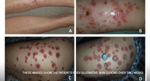 Case Report: Elderly White Woman Presents with Recurrent Skin Lesions