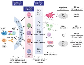 Figure 3: Cytokine Involvement in Psoriatic Arthritis6