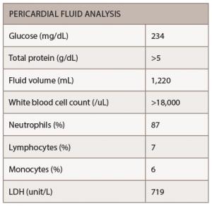 Table 1: Pericardial Fluid Analysis