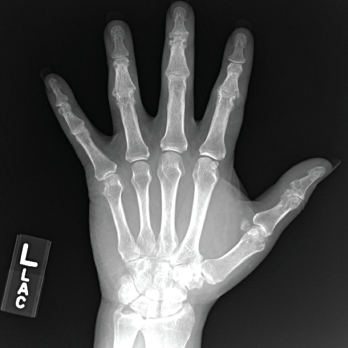 Figure 3. An X-ray of the patient's left hand showed numerous erosions with overhanging edges due to gout.