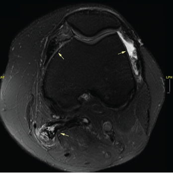 An MRI of the patient's left knee with and without IV contrast. The knee featured diffuse pigmented villonodular synovitis, including within a lobulated Baker's cyst, without substantial change in disease burden dating back to 2017.
