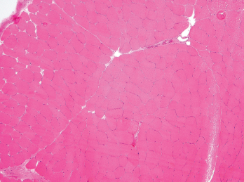 Figure 3. A biopsy of the patient's left quadriceps muscle. Note the scattered atrophic fibers, mainly type 2. There is no myonecrosis, regeneration, inflammation or significant immunohistochemical upregulation of MHC class I and II.