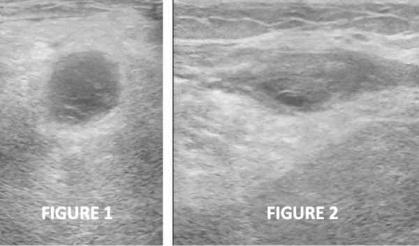 Figures 1 & 2: Transverse and longitudinal ultrasound views, respectively, of the left posterior knee, revealing a cystic mass with heterogeneous internal echotexture and no stalk.
