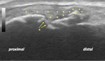 Figure 3: Longitudinal ultrasound view of the left second metacarpophalangeal joint demonstrating diffuse synovitis (*), metacarpal head discontinuity due to bone and cartilage erosion (e), and a bony osteophyte (o).