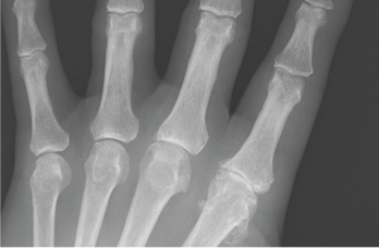 Figure 4: An anteroposterior X-ray of the left hand. Note the metacarpophalangeal (MCP) joint narrowing of digits 2 and 3, osteophytes at the second MCP joint and only mild osteoarthritis at the proximal interphalangeal joints.